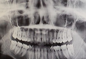 My jaw before the removal - four teeth fewer now