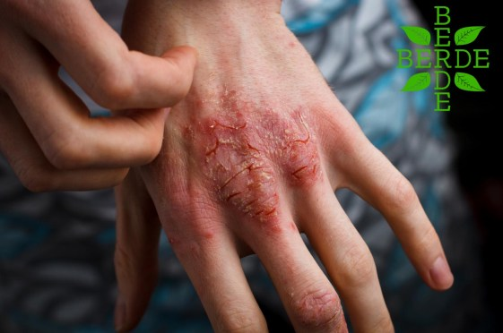 hand with eczema condition