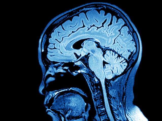 Gute Nachrichten für Epilepsiepatienten: Die Implantation eines ...