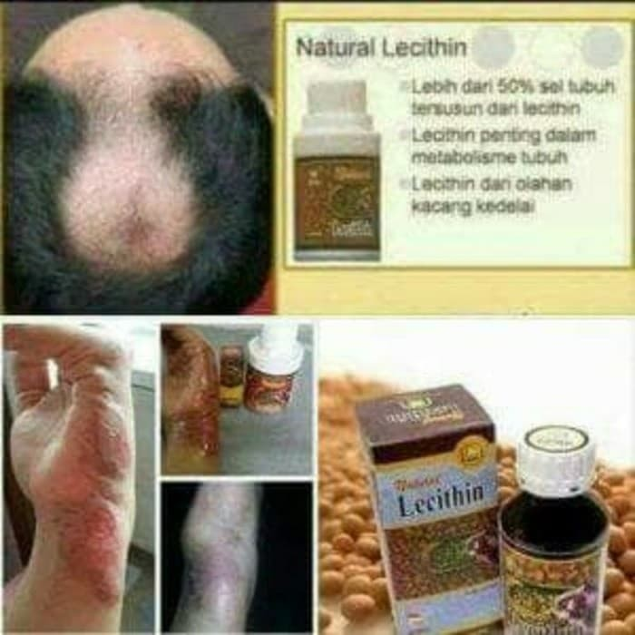 Natural Lecithin Obat Penumbuh Rambutpengering Luka Bekas Luka