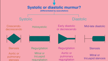 Approach to heart murmur questions for the usmle exams ecuadoctors usmle approach to heart murmur questions ccuart Image collections