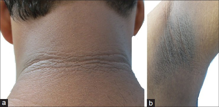 Source An Approach To Acanthosis Nigricans Figure 7 PMC Article By Meghana Madhukar Phiske Is Licensed Under CC BY NC SA 30