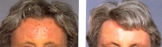Before & After Pictures of Forehead, contributed by Dr B scratching habit associated with TV