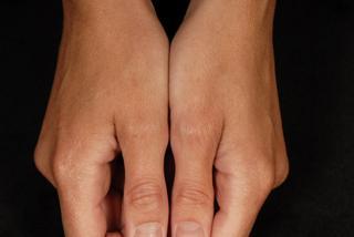 After Hand Eczema