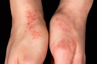 Hand Eczema worsened by rubbing against jeans before habit reversal