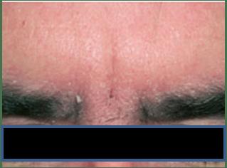 dult with seborrhoeic dermatitis (picture credit: Dermnet NZ)