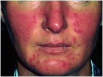 Rosacea on face (picture credit Dermnet NZ)