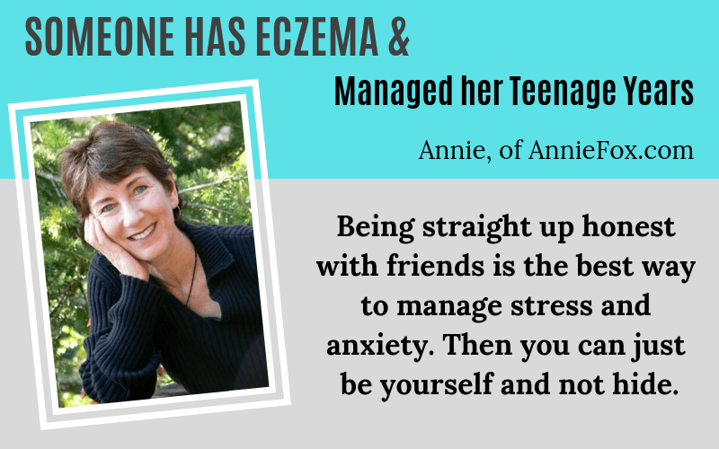 Someone has Eczema Annie Fox Teenage Eczema Story on EczemaBlues