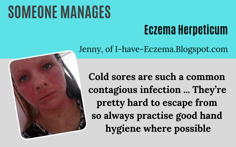 Someone manages Eczema Herpeticum on EczemaBlues