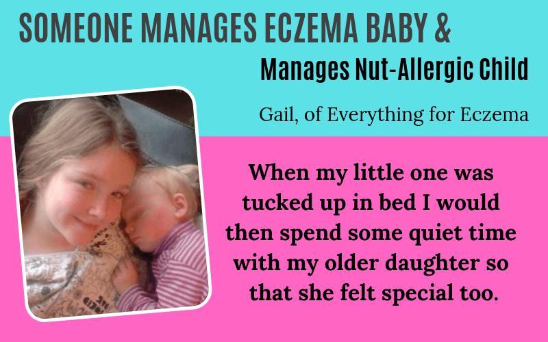 Someone has eczema Gail Story on EczemaBlues Everything for Eczema