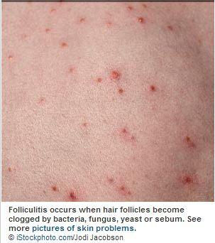 Folliculitis_Eczema