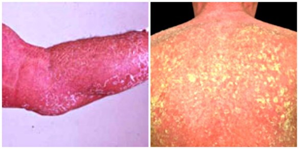 Erythroderma Eczema Complications