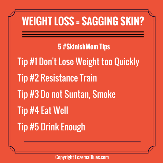 #SkinishMom Investigates Weight loss and Sagging skin