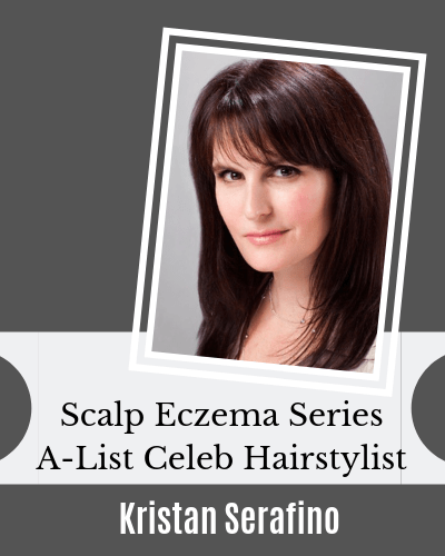 Scalp Eczema Series with Kristan Serafino