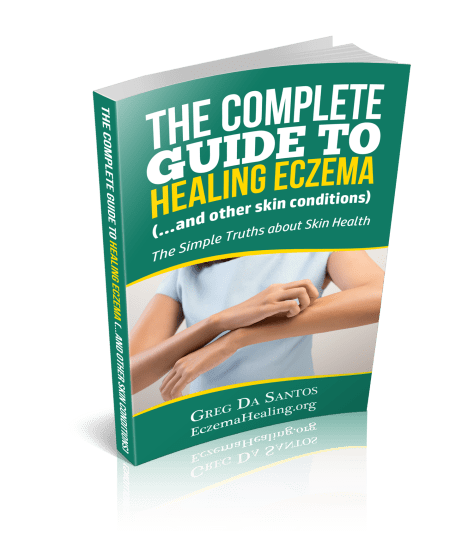 the complete guide to healing eczema