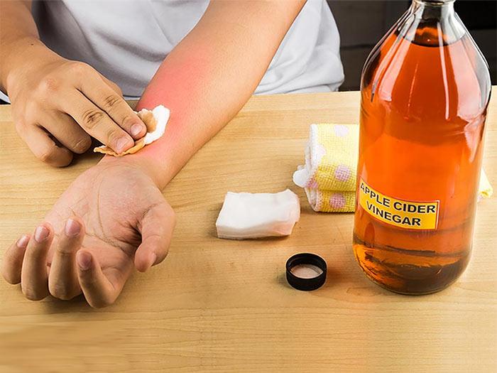 Apple Cider Vinegar To Prevent Dyshidrotic Eczema