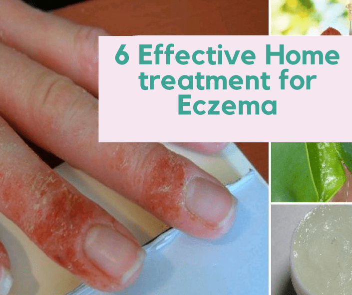 6 Effective Home treatment for Eczema