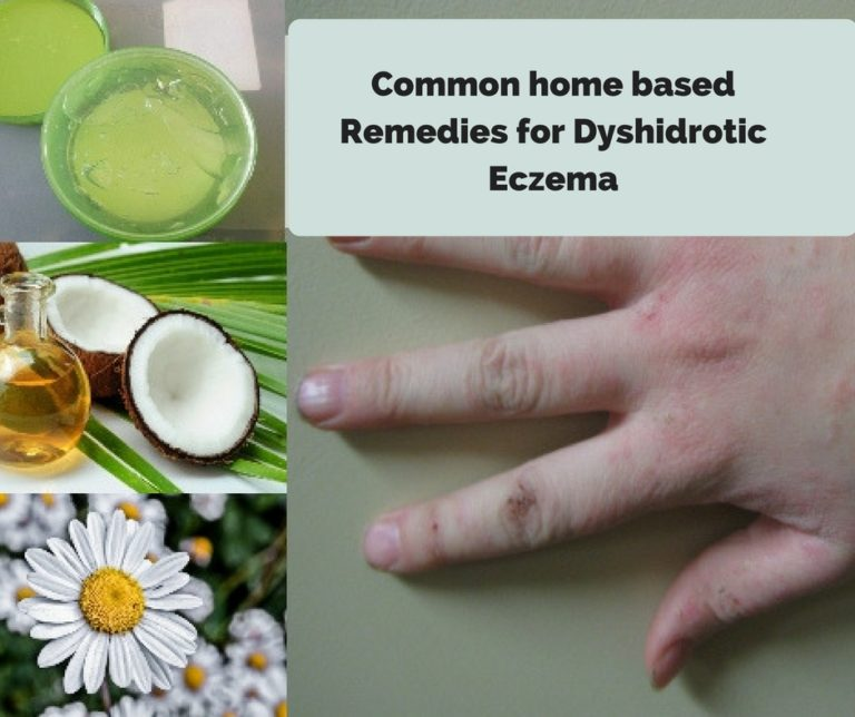 dyshidrotic eczema Home Treatment