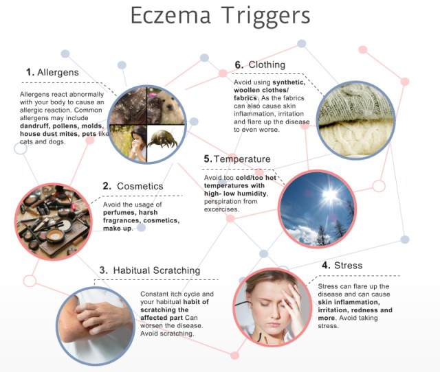 Common Eczema Triggers Infographic