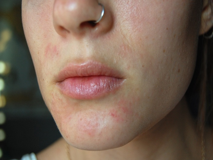 Perioral Dermatitis causes, symptoms