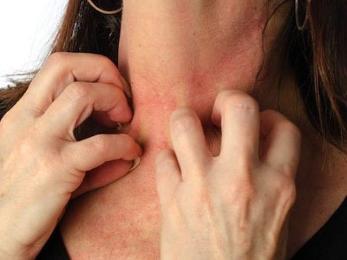 What are the Symptoms of Stress induced eczema