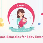 home remedy for baby eczema