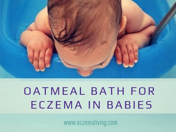 oatmeal bath for eczema in babies