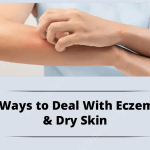 Ways to Deal with eczema & Dry skin