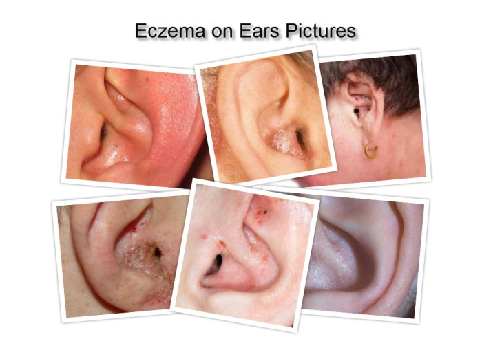 Ear eczema pictures