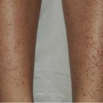 Follicular Eczema on legs
