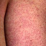 Keratosis Pilaris – Follicular Hyperkeratosis