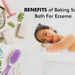 Baking Soda For Eczema – Bath Treatment and Benefits