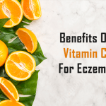 vitamin c for eczema role benefits