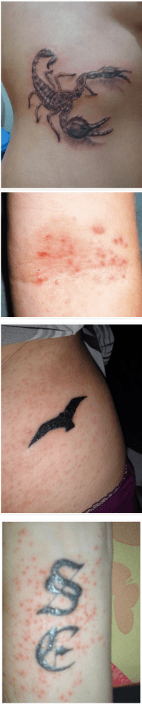Tattoos and Eczema - tattoo ink for sensitive eczema skin