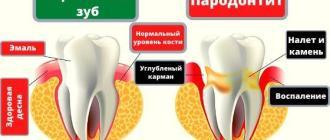 Пародонтит симптомы и лечение