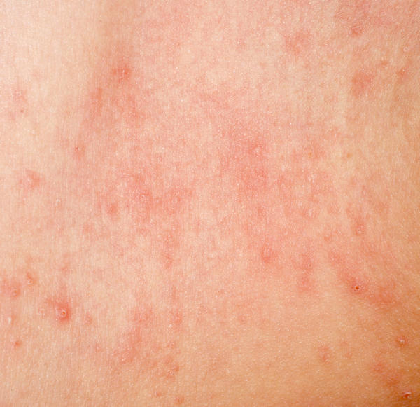 Red Itchy Bites Skin