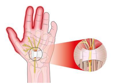 Резултат слика за Numbness of The Left Hand