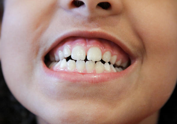 Dark Spot Mouth Inside Cheek