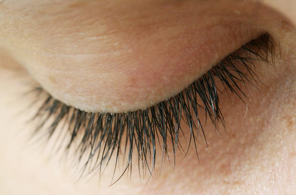 White pimple on lower eyelid - Things You Didn't Know