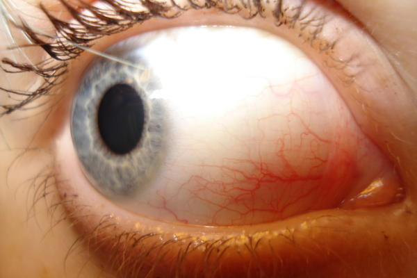 What Could This Small White Dot Near Cornea Of My Eye Be
