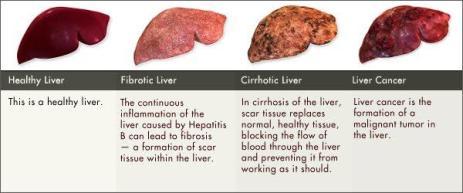 Image result for Liver Cancer