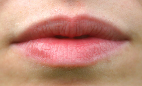 I Have 4 Whitish Pink Spots On My Lower Lip Started With Two