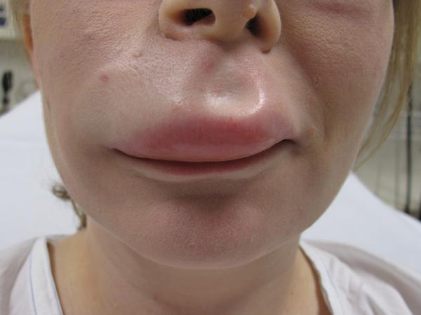... an allergic The picture above shows a swollen lip from an allergic
