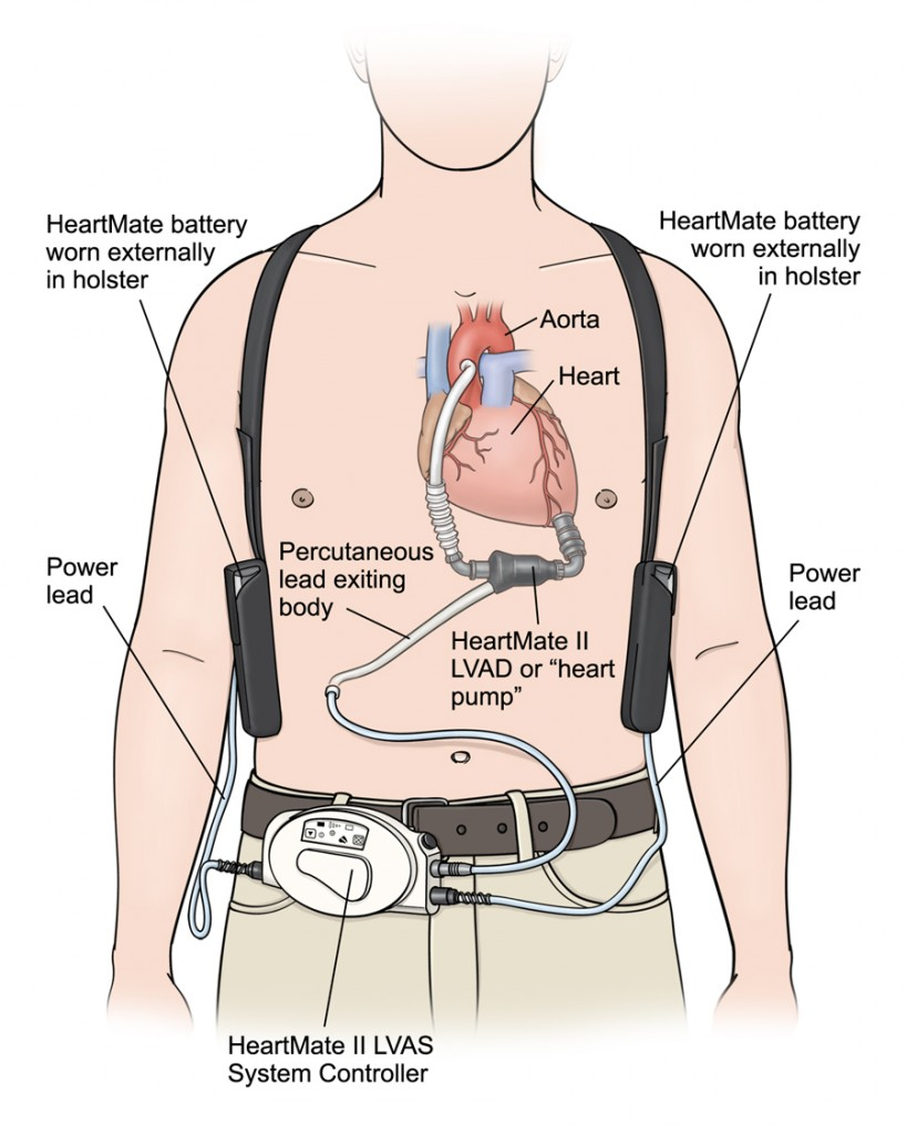 Overview of Left Ventricular Assist Devices LVADs   ED ECMO