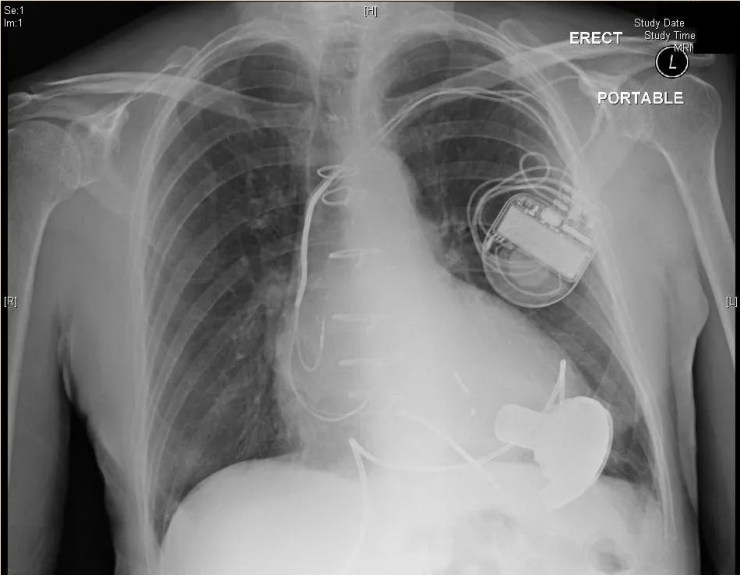 A typical CXR for a patient with an implanted left ventricular assist device. These patients will often have pacemakers or AICDs implanted also.
