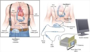 LVAD 2 schematic