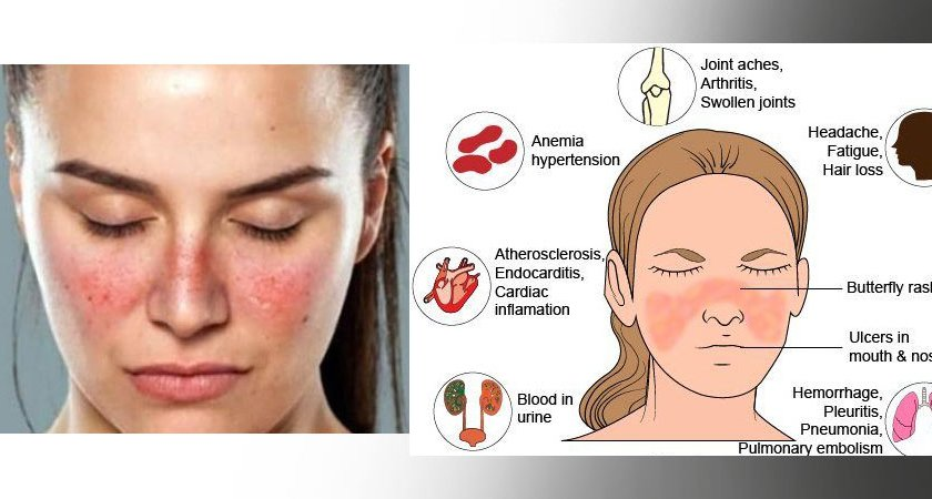 Systemic lupus erythematosus symptoms and precautions
