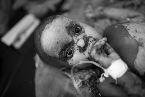 A 4 year-old boy with burns covering 70% of his body awaits further treatment at the Banadir Hospital, located in the capital city of Mogadishu. Many children suffer from burn injuries as a result of cooking accidents involving heated cooking oil or scalding hot water.