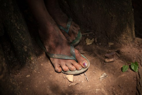 The feet of Rosaura (11) show a skin infection, which together with breathing difficulties and diarrhea is one of the most frequent health issues, the inhabitants of Linda Vista are suffering from. Activists criticise the role of Chiapas' state government which has failed to provide medical services to the community of Linda Vista.