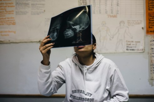 "A young doctor examines the x-ray of a man whose forehead has been fractured. The man said that he had been hit on the head in a bar, but he had arrived to the hospital hours after the incident. According to the doctor, one of the biggest issues faced at the casualty ward of the Katutura State Hospital is the violent and disrespectful behavior of patients. The staff of the casualty do not feel safe while doing weekend night shifts as a noticeable number of patients come to the hospital due to violence. ""If the people fight outside, they will also fight inside,"" a doctor working at the casualty said."